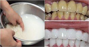 Cách làm trắng răng bằng Dùng nước vo gạo