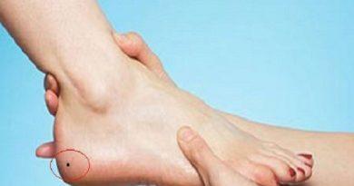 Nốt ruồi gót chân