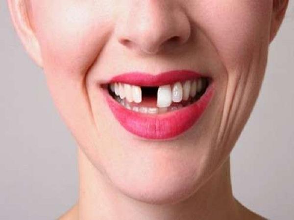 Mơ thấy gãy răng điềm báo gì? Tốt hay xấu?